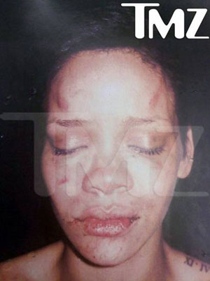 Rihanna after Chris Brown beating.